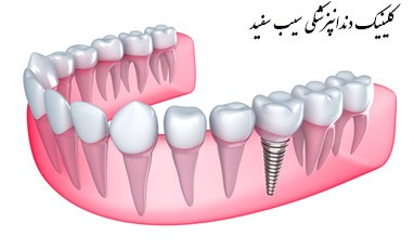 dental-implant-last