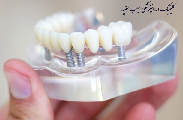 how-many-dental-implants-needs-for-me-?