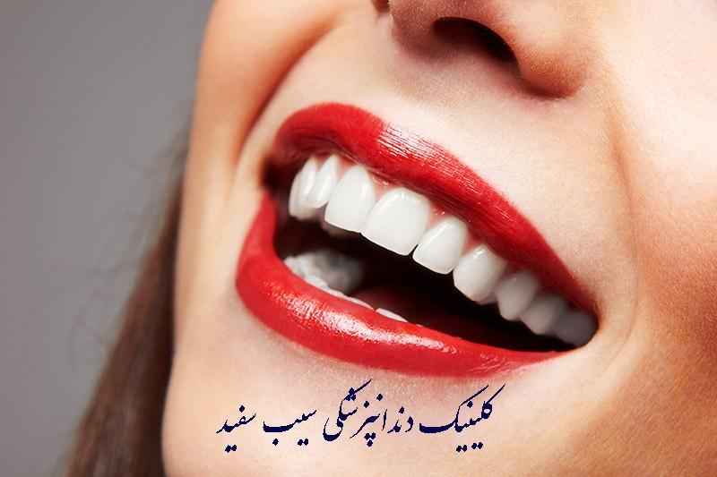 مراقبت از کامپوزیت دندان