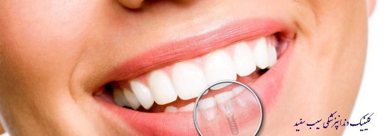 ایمپلنت فوری دندان/ کاشت دندان در یک روز
