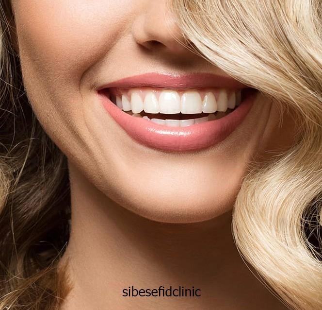 آیا می توان دندان روکش شده را کامپوزیت کرد؟