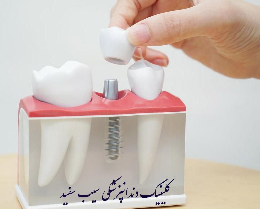 ایمپلنت دندان از چه چیزی ساخته شده است