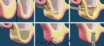 sinus-lift-for-dental-implant