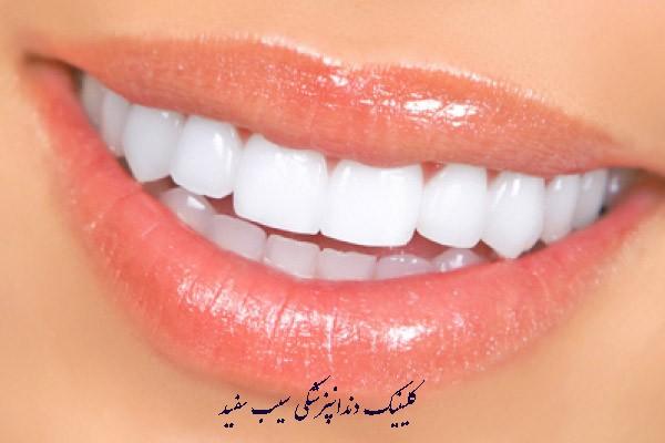 لمینت دندان برای دندان هایی که پر شده اند