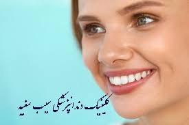 آیا لمینت دندان باعث بیماری لثه می شود