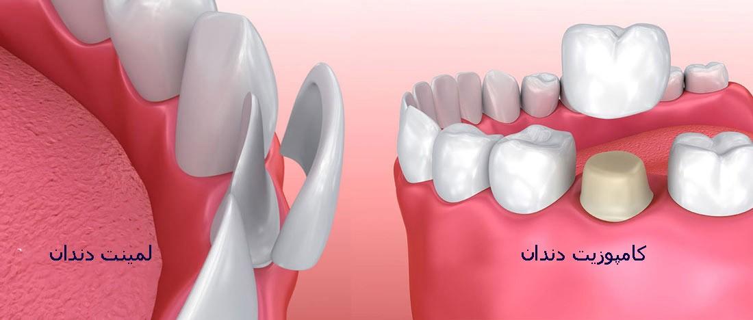 لمینت دندان بهتر است یا تاج دندان