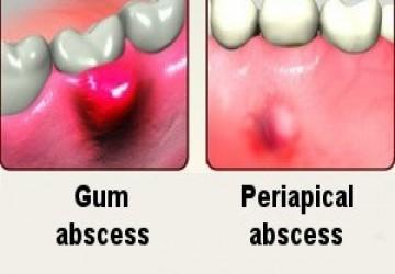 آبسه دندان، علل، علائم و راه درمان آن
