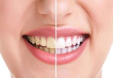 راههای طبیعی سفید کردن دندان ها
