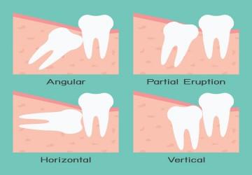 انواع دندان عقل، دندان عقل نهفته، عوارض کشیدن دندان عقل