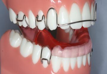 مراحل انجام ارتودنسی دندان