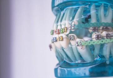 عوارض ارتودنسی دندان. آیا ارتودنسی ضرر دارد؟