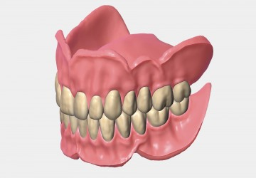 پروتز دندان و انواع آن