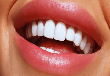 سوالات متداول لمینت دندان، پرسش و پاسخ لمینت دندان