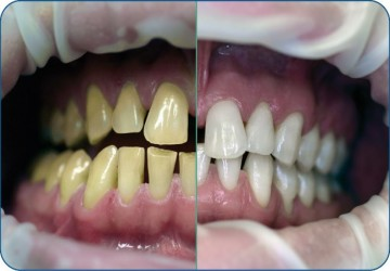 تفاوت بلیچینگ و کامپوزیت دندان چیست؟