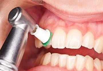 تفاوت بلیچینگ و جرمگیری دندان چیست؟
