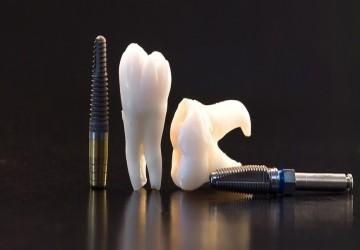 دستورالعملهای مراقبت از ایمپلنت دندان