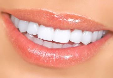 انواع کامپوزیت دندان، بهترین نوع کامپوزیت دندان