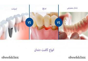 کاشت دندان، بهترین روش کاشت دندان