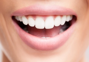 ونیر چیست؟ ونیر کامپوزیت، کامپوزیت ونیر دندان