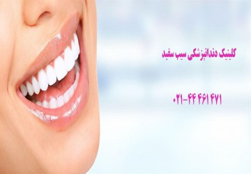 نکات مهم درمورد سفید کردن دندانها