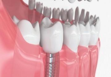 برنامه ریزی درمانی برای ایمپلنت دندان (1)