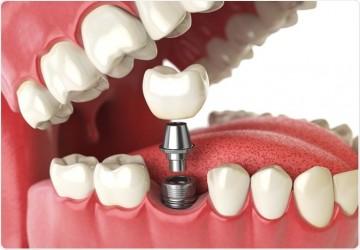 برنامه ریزی درمانی برای ایمپلنت دندان (2)