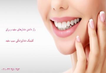 چگونه دندانهای سفیدی داشته باشیم؟راز داشتن دندانهای سفید و روشن