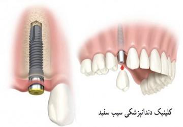 ایمپلنت تک دندان، ایمپلنت برای یک دندان