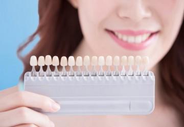 عوارض جانبی ونیر دندان