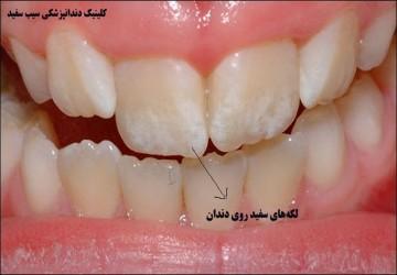 لکههای سفید روی دندان، علت، پیشگیری و درمان آن