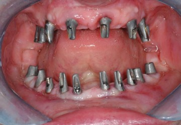 ایمپلنت کل دهان، بازسازی کل دهان با ایمپلنت