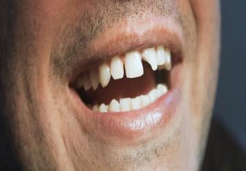 ترمیم دندانهای جلویی با کامپوزیت