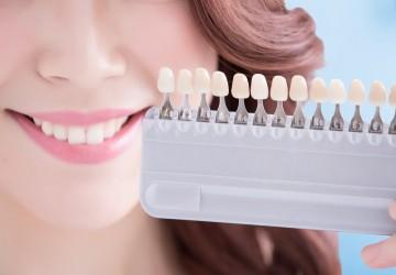 بلیچینگ دندان های غیر حیاتی تغییر رنگ یافته (1)