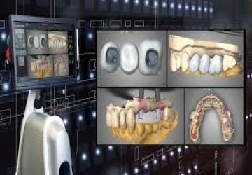 فواید ایمپلنت های دندانی دیجیتالی