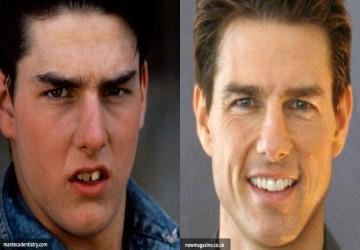21 نفر از افراد مشهور که عمل زیبایی دندان داشتند