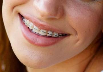 استفاده از ارتودنسی روی دندان هایی که تاج یا کامپوزیت ونیر دارند