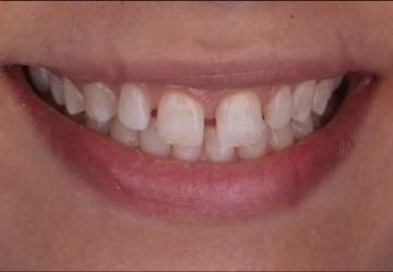 اصلاح فاصله ی بین دو دندان و انحراف خط میانی بین دندان ها