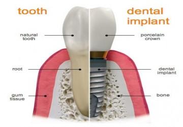 طول درمان ایمپلنت دندان چقدر است؟