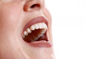 بهترین شکل نگهداری از ونیرهای دندان