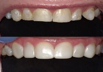 جایگزینی برای لمینت و کامپوزیت دندان- بایوکلیر(Bioclear)