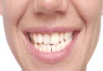 آیا می توان از لمینت دندان برای دندان های کج استفاده کرد