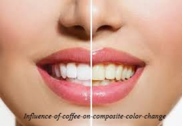 اثر قهوه بر تغییر رنگ کامپوزیت دندان