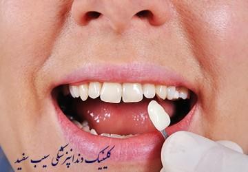 لمینت دندان برای دندان های کوتاه