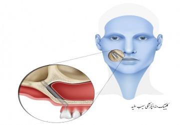 ایمپلنت های دندان زایگما (zygomatic) چیست؟