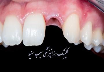 ایمپلنت دندان های جلو