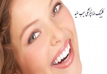مراحل انجام کامپوزیت دندان