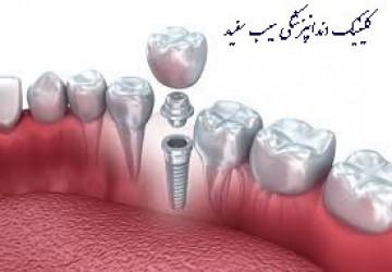 بهترین نوع ایمپلنت دندان