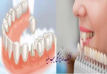 تفاوت ایمپلنت دندان و لمینت دندان