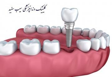 نارسائی ایمپلنت دندان