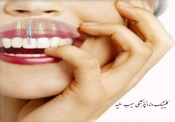 مراحل انجام ایمپلنت دندان